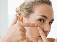 Cum sa scapi de acnee (coșuri) remedii populare
