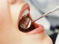 Cum scapam de tartru dentar (piatra dentara) acasa