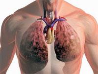Remedii pentru tuberculoza