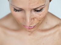 Petele pigmentare de pe piele