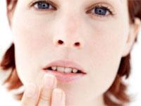 Remedii naturiste pentru herpes la buze