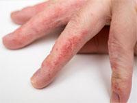 Boala intestinului ?i durerea articulara