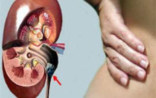 Remedii naturale pentru durerile de rinichi