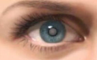 Remedii, tratamente naturiste pentru cataracta
