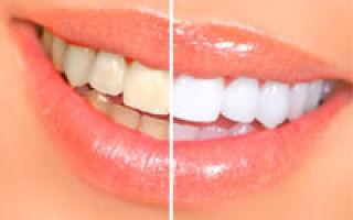 Albirea dinților cu tratamente naturiste