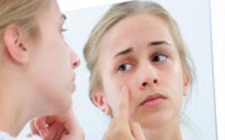 Cosmetologia tratament pentru acnee
