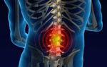 Remedii naturiste pentru dureri de spate, tratamente