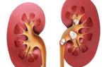 Pietre la rinichi — tratament naturist