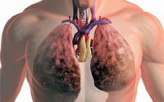 Tratament naturist (remedii) pentru tuberculoza