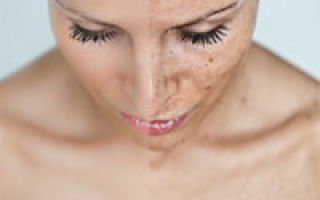 Cum scăpam de petele pigmentare de pe piele