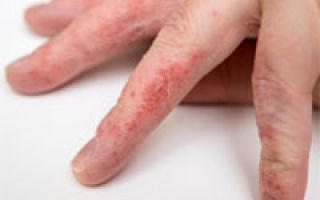 Tratamente naturale pentru eczema