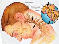Osteocondroza cervicala