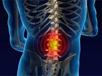 remedii naturale pentru durerea de spate
