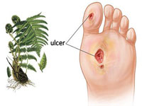 Ulcer trofic