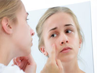 Tratament naturist pentru acnee